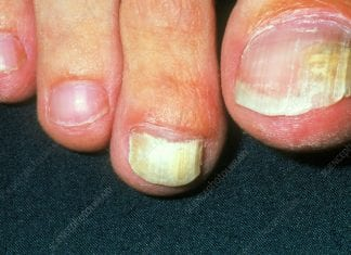 Understanding Tinea Unguium And How It Affects Your Nails